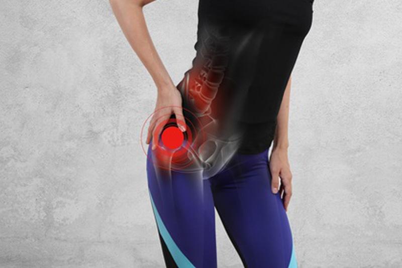 Trocanteritis o GTPS. Dolor en la cadera