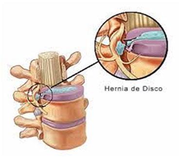 Fisioterapia y osteopatía para hernia de disco