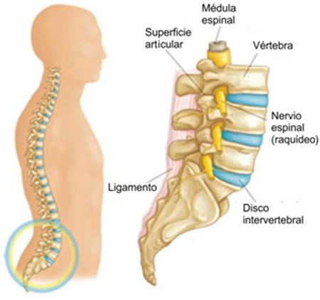 Dolor de cadera derivado de la columna