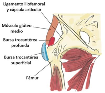 Fuentes extraarticulares del dolor de cadera