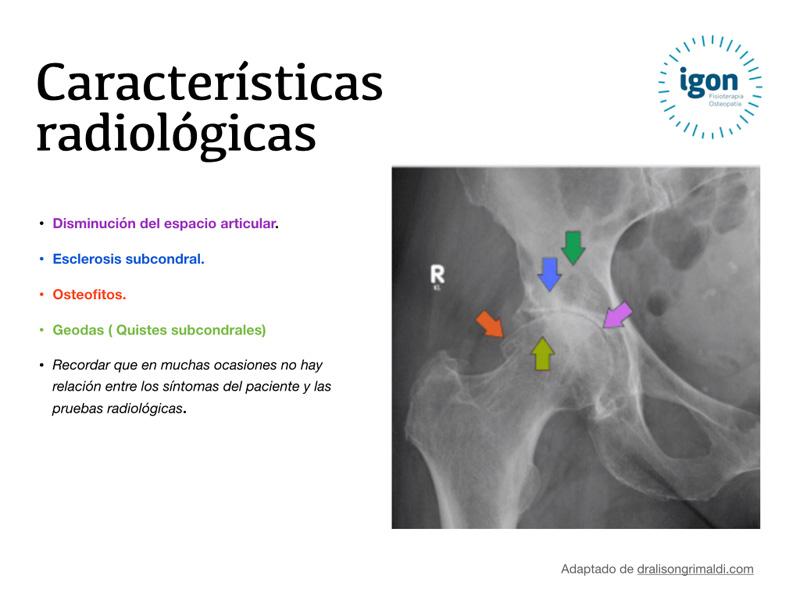 Radiografía de cadera con artrosis