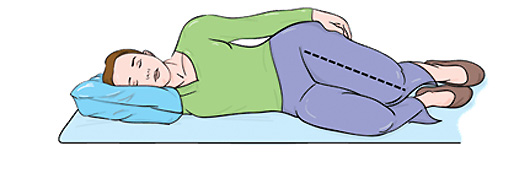 Mala posición para dormir con trocanteritis